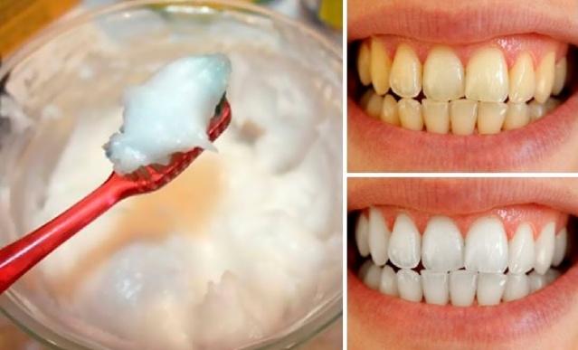 Flaş haber..Bunu Dişlerinize Sürerseniz Dişleriniz Bembeyaz Olacaktır..!Ayrıntılar Haberin Detayındadır