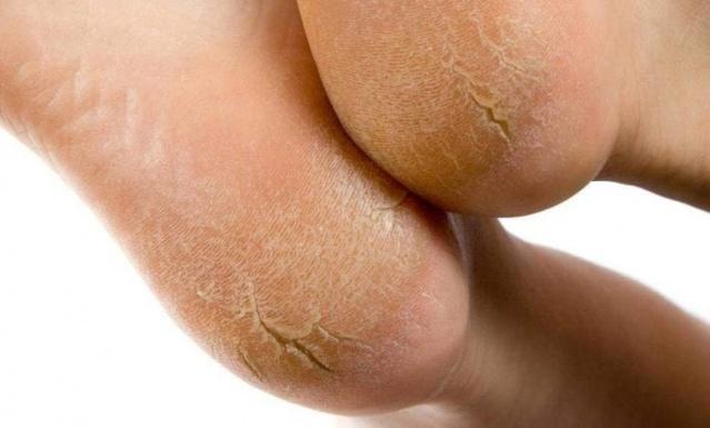 Topuk Çatlağı Tedavisi Nasıl Yapılır: Bu yapılışı oldukça kolay olan a'spirin limon karışımı ile topuk çatlakları yok olacak, ayaklarınız bebek gibi yumuşak olacak. Ayak nasırları, ayak tahrişleri gibi sorunlar kaybolacak. yumuşak sağlıklı ayaklar için yapmanız gereken oldukça basit.