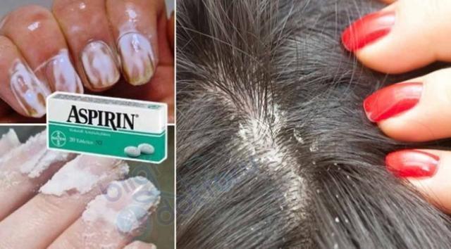 Aspirin ne işe yarar? Aspirin oldukça uzun bir zamandan beri ağrı ve iltihabın hafifletilmesinde kullanılmaktadır. Ağrılar için kullanımında baş rolü baş ağrısı, diş ağrısı ve regl ağrıları almaktadır. Aynı zamanda aspirin soğuk algınlığı ve grip benzeri semptomlar gösteren sorunların giderilmesinde de etkilidir. Bunların dışında aspirin ateş düşürücü özelliği ile de ön plana çıkmaktadır. Bir kimyasal bileşik olarak ismini ifade etmek gerekirse aspirin, asetilsalisilik asittir. Soğuk algınlığı ve grip için reçete edilen ilaçların büyük bir bölümünde, ilaçların yapısındaki bileşenlerden biri de aspirindir. Çoğu aspirin eczanelerin yanı sıra, bazı sağlık marketler, süpermarketler ve alışveriş merkezlerinden temin edilebilir. Ancak aspirinin türüne göre reçete ile satılanları da mevcuttur. Aspirin tablet ya da fitil formunda bulunabilir. Bunun dışında ağız ülseri ve uçuk gibi hastalıklar için kullanılabilen jel formunda da satılmaktadır.Genellikle inme veya kalp krizi geçirilmesi üzerine ya da inme veya kalp krizi riski taşıyor olunması durumlarında doktorlar tarafından reçete edilebilir. Aspirinin bu sorunlar ile karşı karşıyayken kullanımı, ağrı kesici olarak içilmesinden çok farklıdır. Dozları çok daha yüksek olabilir. Ama aspirin içeriği itibarıyla sadece içilerek kullanılmaz. Çünkü cilt için de oldukça faydalı sonuçlar verdiği klinik deneyler ile kanıtlanmıştır.