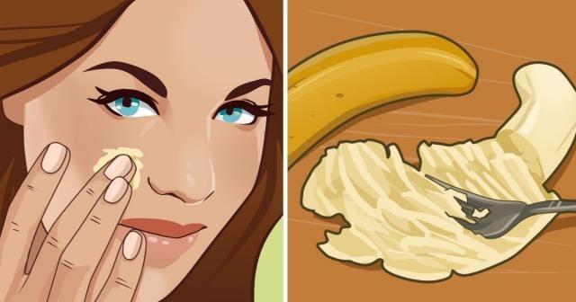 Muz maskesi sivilceye nasıl iyi gelir ? Çoğunlukla lezzetli yiyecekler aynı zamanda zararlılar sınıfındadır. Çikolata, patates kızartması, baklava gibi yiyecekleri fazla tüketmememiz tavsiye edilir.