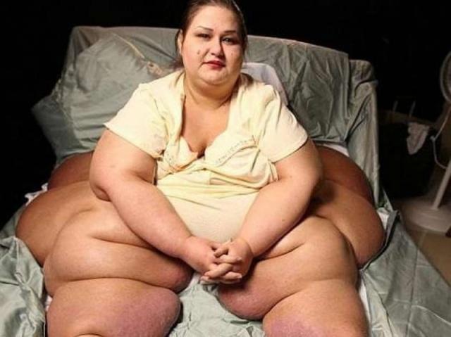 362 Kilo Veren Kadın  Dört yıldır kilo vermek için çaba sarfeden genç kadın şimdilerde 90 kilo civarında. Son halini gören gözlerine inanamıyor. Son hali ve verdiği yaşam mücadelesini görmek için resimlerin üzerine tklayarak ilerleyiniz.