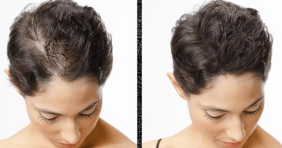 Her gün 50-100 arası saç teli dökülmesi normal, bu rakam giderek artarsa, zaman içinde saçlar daha seyrek görünmeye başlar. Saçların seyrelmesi, çevresel, genetik, yaşam tarzı, ve sağlık sorunlarına bağlı olarak gelişen bir durum olup, hem kadın, hem de erkeklerde görülebilir.