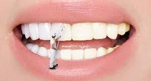 Dişlerinizin rengini değiştiren 7 ilginç alışkanlık