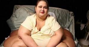 362 Kilo veren kadının adım adım değişimi